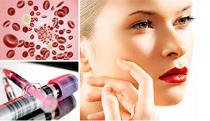 plasmotherapy Плазмолифтинг: молодость собственною кровью
