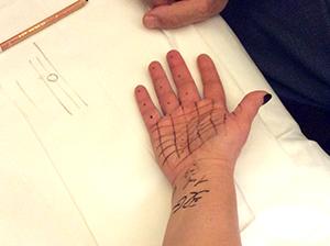 FullSizeRender Практический опыт по контурной пластике в клинике Sun Celso (Милан, Италия)