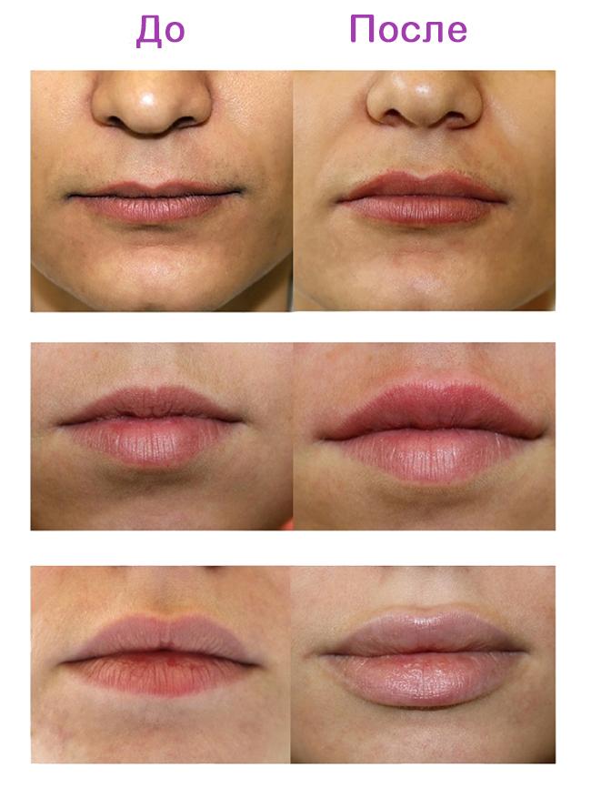 uvlazhnyau 1 Эффективное увлажнение губ