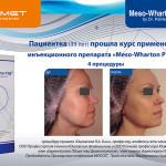 Meso-Wharton P199™