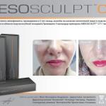 43 150x150 MesoSculpt™ С71