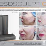 Emet MesoSculpt 4 150x150 MesoSculpt™ С71