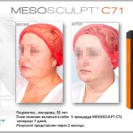 MesoSculpt™ С71