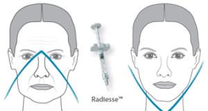 Radiesse1 300x160 Radiesse (Радиес)