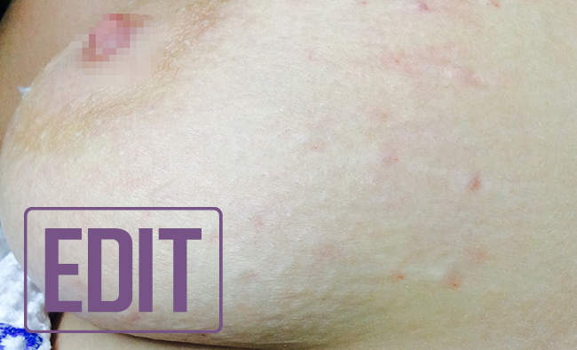 Растяжки на груди - деликатная женская проблема