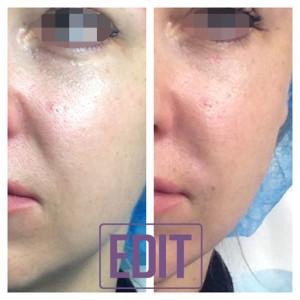 Image 1 300x300 Новая концепция омоложения Full face lifting одним препаратом в одну процедуру