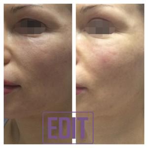 Image 2 300x300 Новая концепция омоложения Full face lifting одним препаратом в одну процедуру