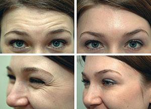 n1 Нейронокс   препарат для устранения морщин на лице и шее