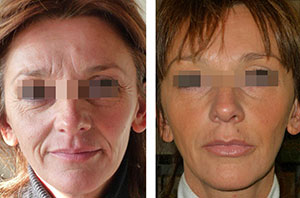 n5 Нейронокс   препарат для устранения морщин на лице и шее
