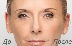 Gialuronovaya kislota 2 Гиалуроновая кислота – панацея от всех косметологических проблем?