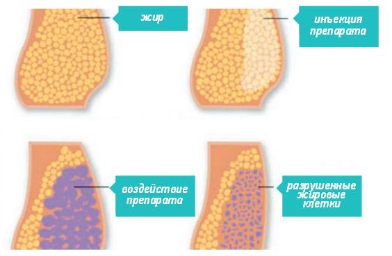 препараты предназначенные для похудения диабетикам