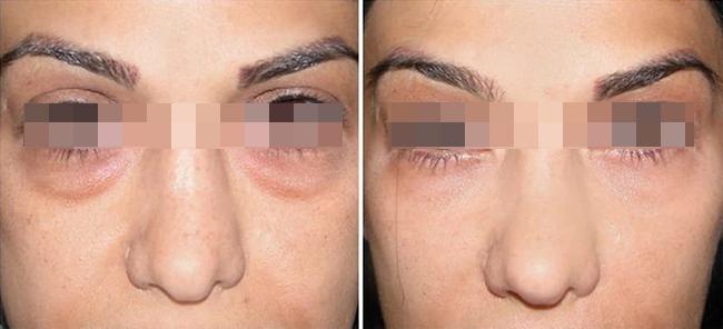 Dermaheal eye bag Убрать мешки под глазами