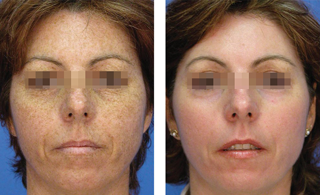 Самые эффективные процедуры в борьбе с пигментацией кожи