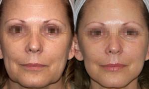 45++ 300x179 Рейтинг препаратов для биоревитализации кожи в возрасте 45+