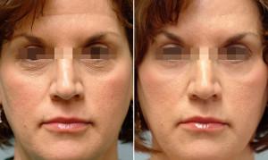 45+ 300x179 Рейтинг препаратов для биоревитализации кожи в возрасте 45+