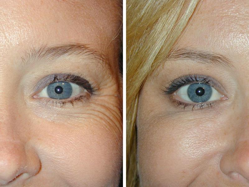 firstwr2 Первые морщинки вокруг глаз, что предпочесть: ботокс или гиалуроновую кислоту? (Мнение эксперта)