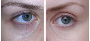eyes2 300x136 Эффект панды