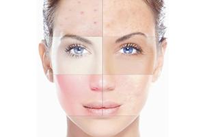 Корнеотерапия - новое направление в косметологии