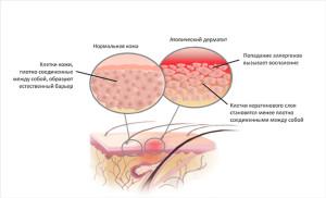 korneo2 300x182 Корнеотерапия   новое направление в косметологии