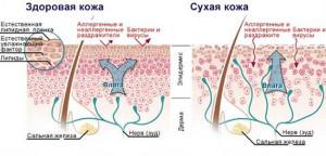 korneo3 300x144 Корнеотерапия   новое направление в косметологии