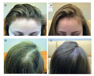 EB 3 300x242 Лечение выпадения волос у женщин