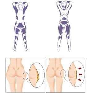 Нехирургическая липосакция Aqualyx