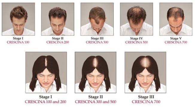 crescina man woman Crescina   эффективная борьба с выпадением и рост новых волос