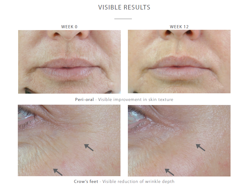 r retinoate before and afterr r Retinoate от Medik8