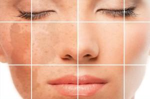 ZO Obagi 300x199 ZO Skin Health набор для ежедневного ухода за кожей