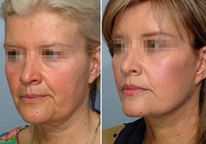 posle 50+ Подтяжка лица после 50 ти лет, что дает реальный результат без операции?