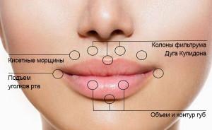 lips4 300x184 Контурная пластика губ