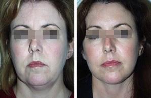 miostimuljacijalica2 Миостимуляция лица