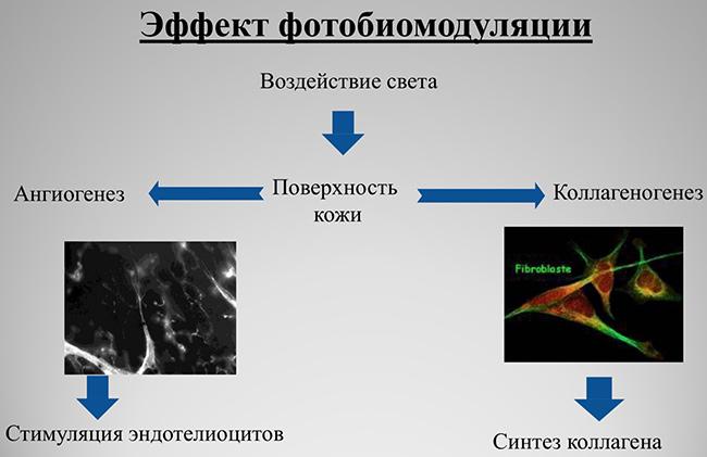photoled2 Фотодинамическая LED   терапия