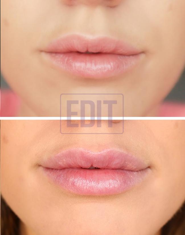 1lips Ботокс губ