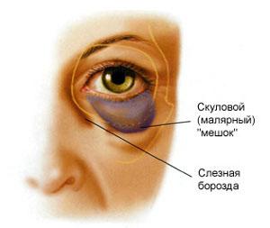 Malyarnyye meshki2 Малярные мешки: причины появления и эффективный метод устранения