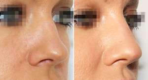 Nose1 300x163 Нехирургическая коррекция формы носа