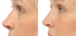 Нехирургическая коррекция формы носа