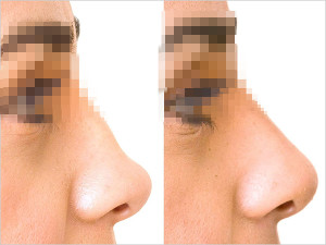 Nose3 300x225 Нехирургическая коррекция формы носа