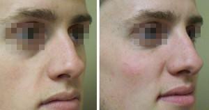 Nose4 300x158 Нехирургическая коррекция формы носа
