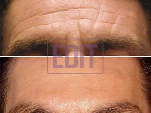botoxlob10 300x225 Ботокс в лоб