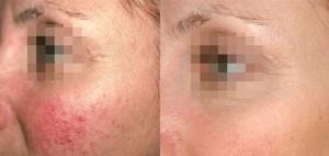 kuperoz 300x142 Лечение купероза на лице