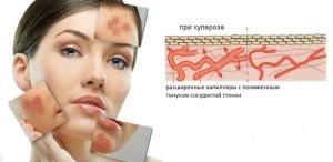 kuperoz11 300x146 Лечение купероза на лице