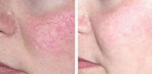 Лечение купероза на лице