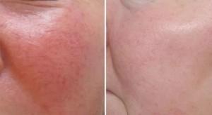 kuperoz4jpg 300x164 Лечение купероза на лице
