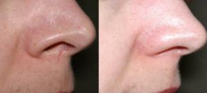 kuperoz5 300x135 Лечение купероза на лице