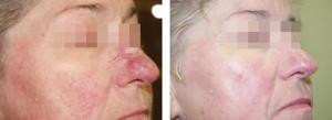 kuperoz6jpg 300x109 Лечение купероза на лице