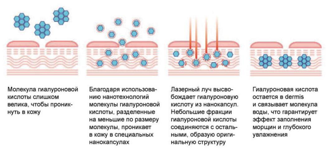 lazer Лазерная биоревитализация