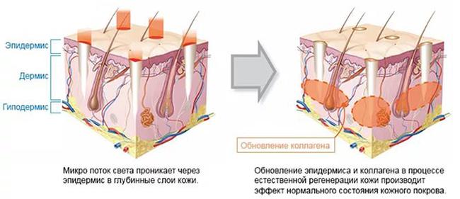 Лазерная биоревитализация