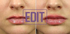 lips10 300x148 Ботокс губ