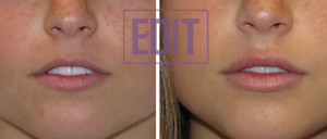 lips11 300x128 Ботокс губ